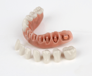 Picture of Accuframe Fixed Hybrid Dentures